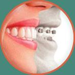 Ortodoncia y Ortopedia Maxilar